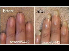LOWEST PRICE Amazing result NAIL GROWTH & STRONG NAILS Hardener RESTORE NAILS