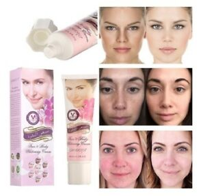 New Beauty Facial Face Whitening Cream For Dark Skin Bleaching Lotion
