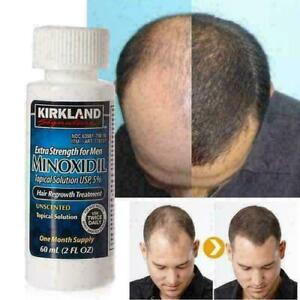 Kirkland Signature 5% Extra Strength Hair Regrowth Treatment For Men - 12 Months