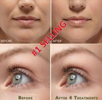 Best 100%  Under Eye Cream - Remove Dark Circles Wrinkles Face Lines Puffy Eye