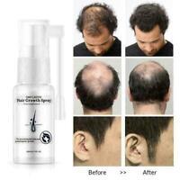 20ml Repair Treatment Serum Liquid Spray Haarausfall Heiß Wachstum für R5H4