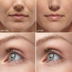 Hyaluronic Acid Gel Cream - Anti-Aging Wrinkle Face & Eye (HA) Serum Moisturizer