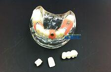 Dental Model Study Teaching Model Teeth Implant Model Teeth Demonstrates  1PC