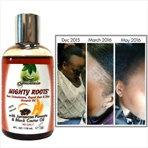 Fountain Hairline Edge & Hair Growth Oil/Jamaican Pimento and Black Castor Oil