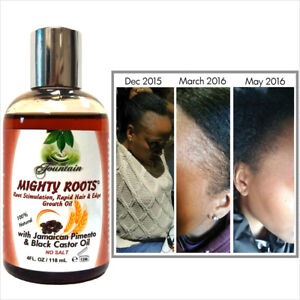Receding hairline or thin hair growth oil with Jamaican pimento black castor oil