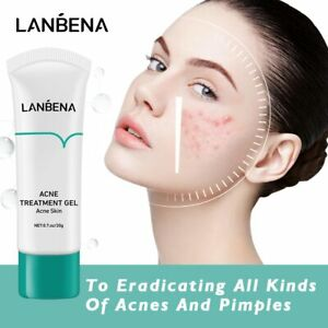 Acne Treatment Gel Scar Blackhead Remover Oil Control Shrink Pores Pimples Care