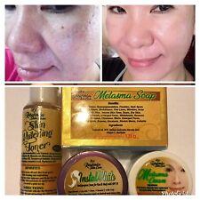 Melasma Set Soap Cream Toner Sunblock Pimples Dark Spot 100% Effective 4 In 1