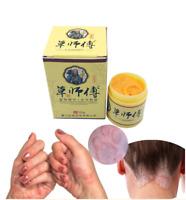 10 Eczema Rosacea Psoriasis Dermatitis Treatment Cream Gel Ointment 29A, EU