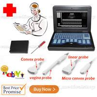 A++ Portable Ultrasound Scanner Laptop Machine Convex/Linear/Cardiac/Tranvaginal