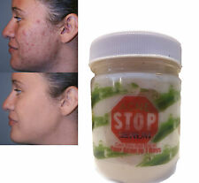ACNE STOP face treatment care acne scar removal cream blemish stretch marks200ml