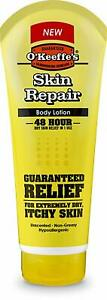 O'Keeffe's Skin Repair Tube, 190 ml Relief for Extra Dry and Itchy Skin