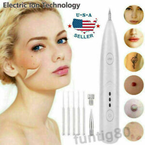 Ion Laser Freckle Skin Mole Dark Spot Remover Face Wart Tag Tattoo Removal Pen