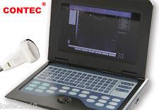 CONTEC CMS600P2 Full Digital B-Ultrasound Diagnostic System +3.5mhz Convex Probe
