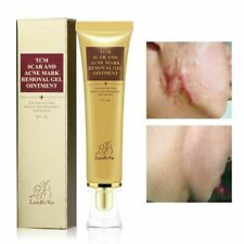 Stretch Marks Remove Acne Scar Removal Treatment Cream Face Whitening Skin Care