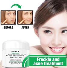 Treatment Cream Blackhead Face Shrink Whitening Skin Care Cosmetics All Skin