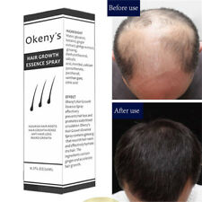 20ml Men Women Stop Hair Loss Fast Growth Essence Ginger Extract Regrowth Spray