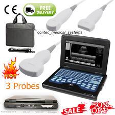 CONTEC CMS600P2 Full Digital Laptop Portable Ultrasound Scanner Machine+3 Probes