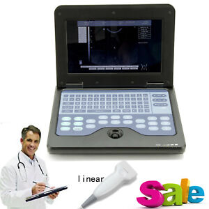 Promotion Ultrasound Scanner Laptop Machine CMS600P2 with 7.5Mhz Linear Probe,CE