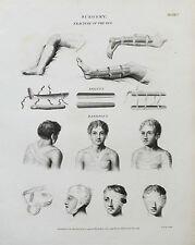 1811 Surgery Medical Fractures Splints Bandages Antique Print Engraving Rees