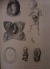 Embryologie ou Ovologie Humaine Edition Originale par VELPEAU