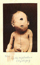 Framed Print - Victorian Medical Oddities Cyclops Baby (Gothic Horror Picture)
