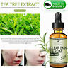 100%Natural Tea Tree Serum Acne Treatment Anti Acne Scar Pimple Removal SkinCare