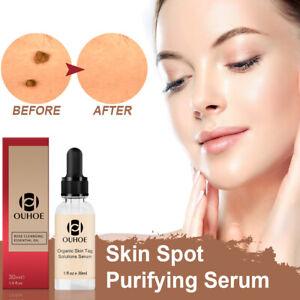 Magic Organic Skin Spot Purifying Serum ALL NATURAL TAGS FREE Mole & TAG REMOVAL