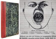 Schwabe, homöopathischer Hausarzt, Diphtheritis, 1881