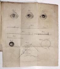 Ophthalmologie. - Jüngken, Das Coreoncion. Ein Beitrag zur Pupillenbildung 1817