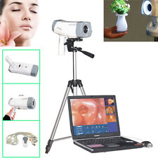 Digital Video Electronic Colposcope+Soft​ware SONY Camera 800,000 pixels +Tripod