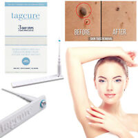 Tagcure Skin Tag DIY Removal Kit 3 Step Safe Permanent Treatment Remover Device