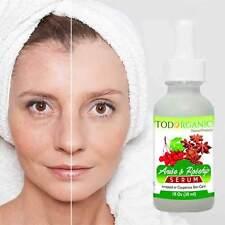 Suero de Anis & Rosehip - Ideal Para Piel Sensible e Irritada - 100% Natural