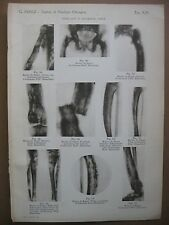stampa antica old print DISPLASIE E DISTROFIE OSSEE MORBO DI PAGET FEMORE 1938