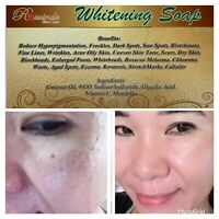 Whitening Soap Remove Dark Spot Freckles And More Best Seller 100% Effective