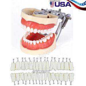 Kilgore NISSIN 200 Type Dental Typodont Model Removable Preparation Teeth 32Pcs