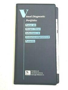 1992 Visual Diagnostic Portfolio HERPES virus in immunocompromised ZOVIRAX Slide