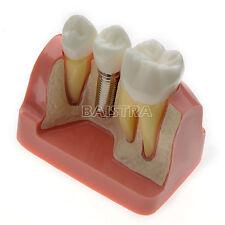 Dental Teeth Implant Analysis Crown Bridge Demonstration Tooth Model #2017