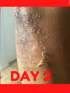 YELLOW PEELING OIL/ MAX STRENGTH Whitening lighten Scar Pimple 50%MORE- 15ml