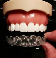 Custom Set Dental Teeth Whitening Trays~Upper and Lower~ MADE BY USA DENTAL LAB
