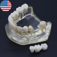USA Dental Implant Typodont Teeth Model Lower Jaw Crown 3 Unit Bridge Demo 2010