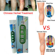 Medical Varicose Veins Treatment Leg Acid Itching Lumps Old Bad Vasculitis Cream