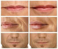 Microcurrent RF Lip Filler Plumper Face Lift Wrinkle Eraser Skin Care Machine