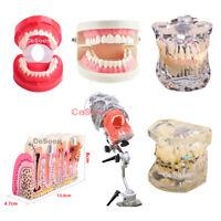 Dental Dentoform Typodont Standard Adult Analysis Demonstration Teeth Model Type