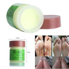 1PC Cure Psoriasis Ointment Ringworm Cream Tinea Stubborn Psoriasis Dermatitis