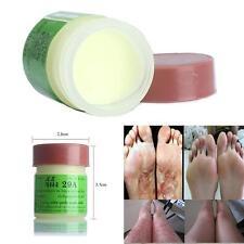 1x Cure Psoriasis Ointment Ringworm Cream Tinea Stubborn Psoriasis Dermatitis 1v