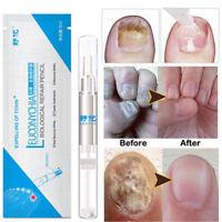 3ML Anti Fungal Treatment Nail Pen Onychomycosis Paronychia Infection Herbal FB