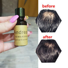 1PC Andrea Hair Growth Essence Oil Fast Hair Growth Natural Hair Loss Treatment
