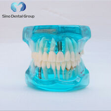 1 X Dental Typodont Teeth Removabe Dental Teeth Study Model For Teaching Blue