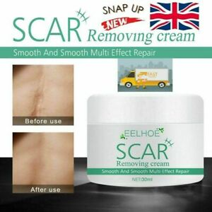 Strong Acne Scar Spots Removal Cream Cuts Burns Stretch Marks Clarifying Skin UK