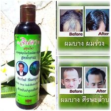 Jinda Hair Growth Shampoo Stop Hair Loss Thin Hair Natural Herbal 250ml